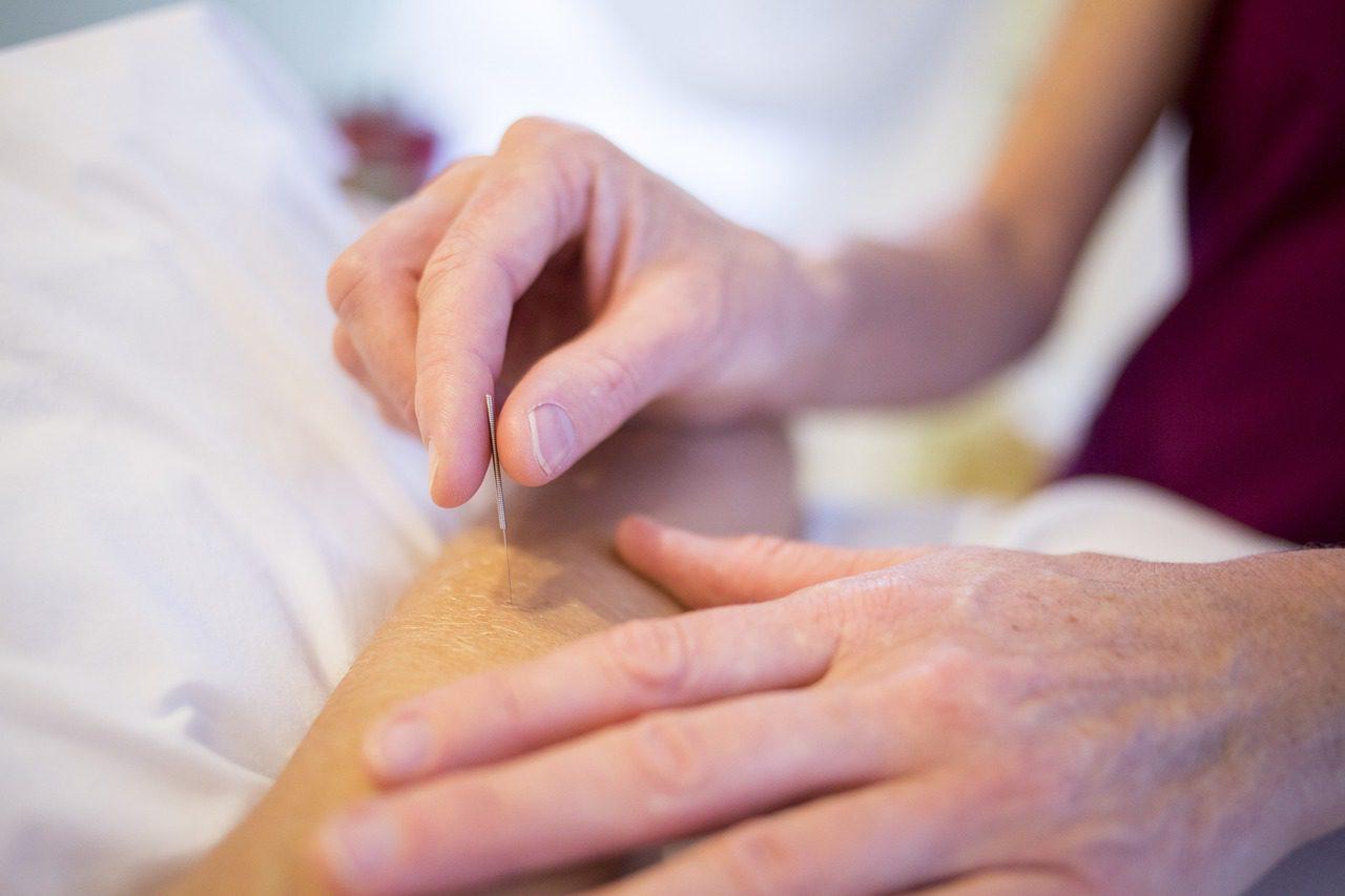 benefícios da acupuntura terapias holísticas